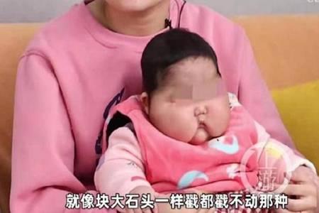婴儿用抑菌霜后成大头娃娃 大头宝宝背后真相令人发指